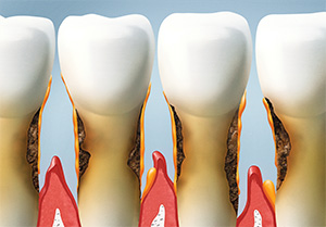 Castro Valley family dentist | gum disease treatment, bleeding gums| Mark S. Murphy DDS