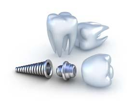 Castro Valley implant dentist | dental implants, replace missing teeth | Mark S. Murphy DDS