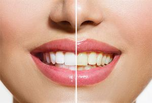 Castro Valley cosmetic dentist | teeth whitening | Mark S. Murphy DDS